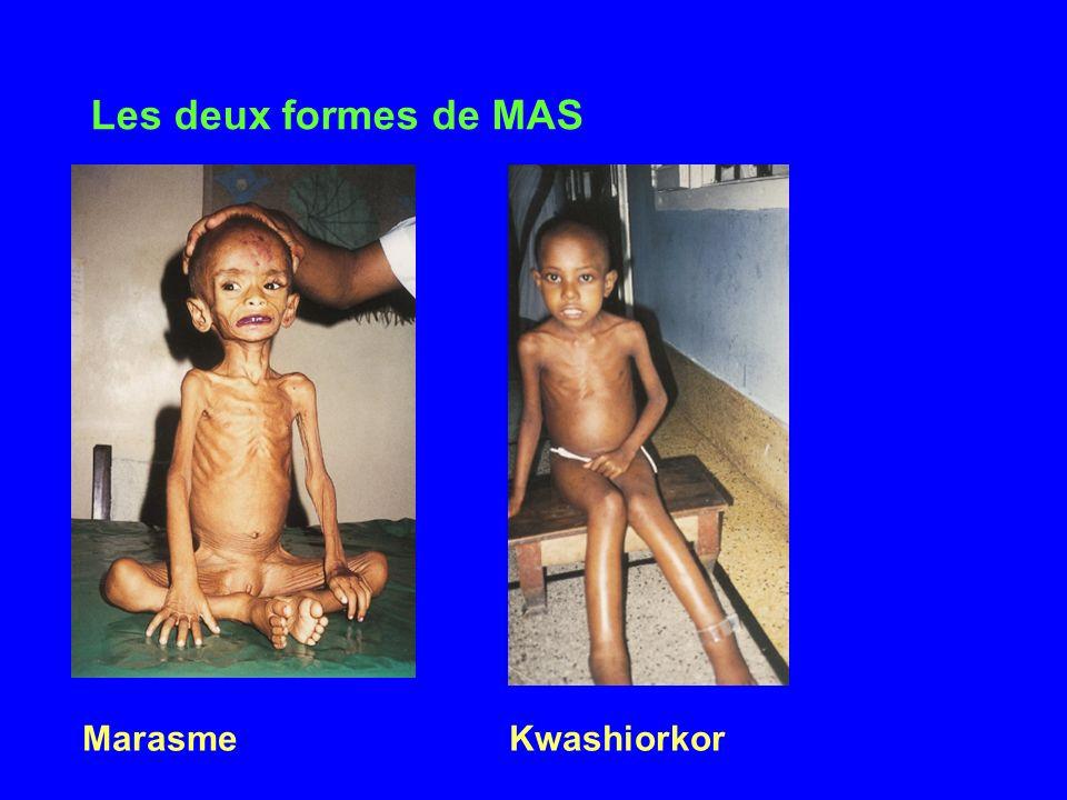 Les deux formes de MAS MarasmeKwashiorkor