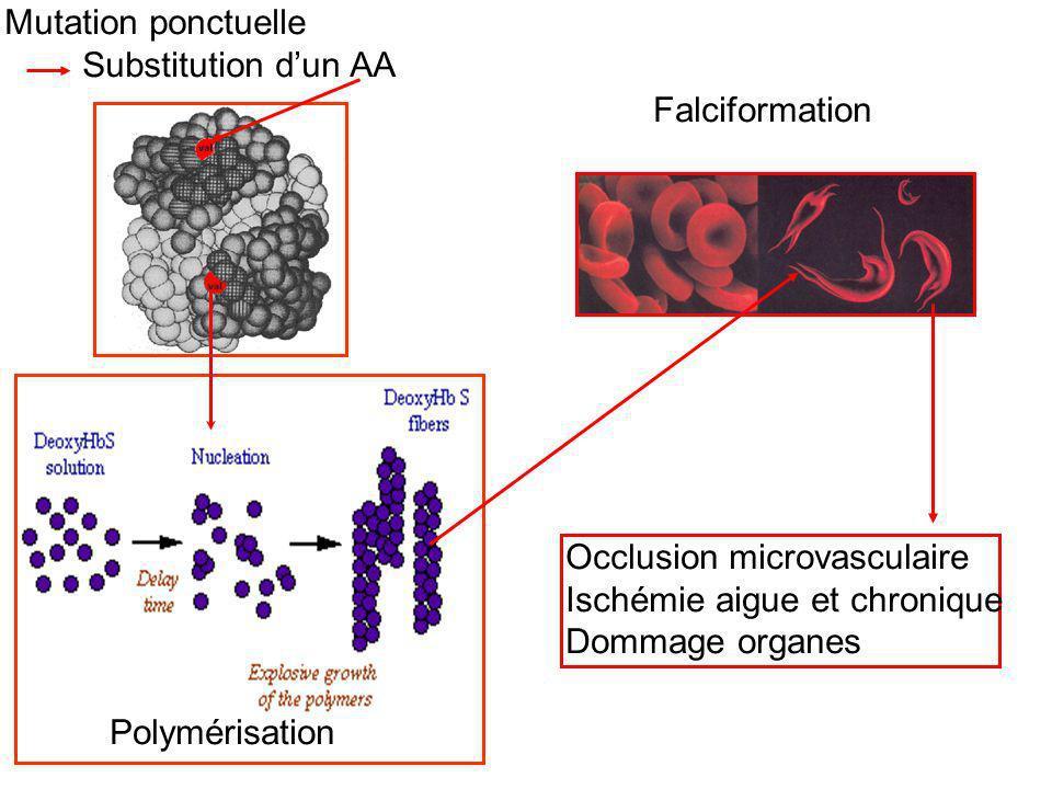 Occlusion microvasculaire Ischémie aigue et chronique Dommage organes Polymérisation Falciformation Mutation ponctuelle Substitution dun AA