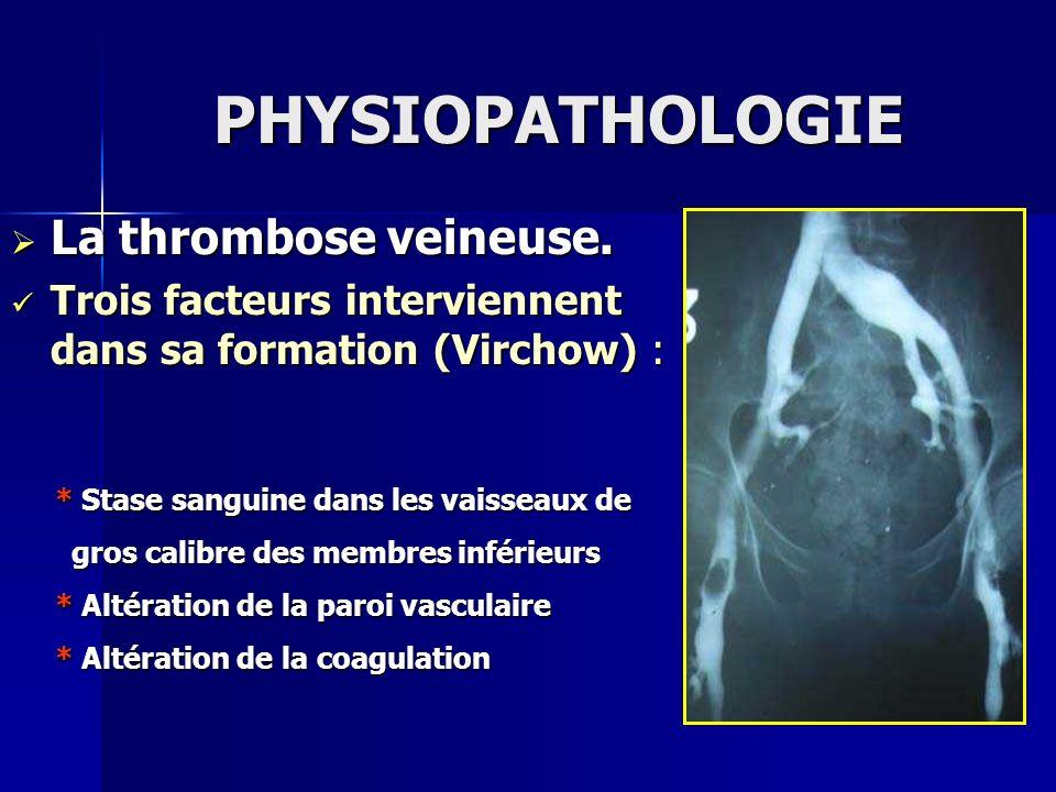 PHYSIOPATHOLOGIE La thrombose veineuse. La thrombose veineuse. Trois facteurs interviennent dans sa formation (Virchow) : Trois facteurs interviennent