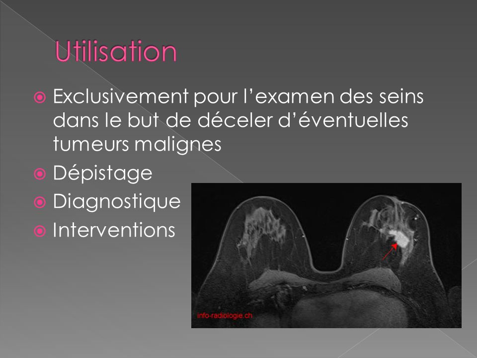 Exclusivement pour lexamen des seins dans le but de déceler déventuelles tumeurs malignes Dépistage Diagnostique Interventions