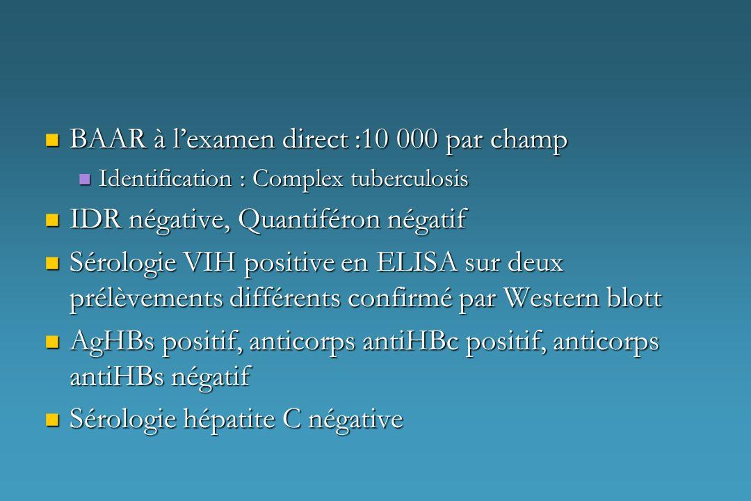 BAAR à lexamen direct :10 000 par champ BAAR à lexamen direct :10 000 par champ Identification : Complex tuberculosis Identification : Complex tubercu