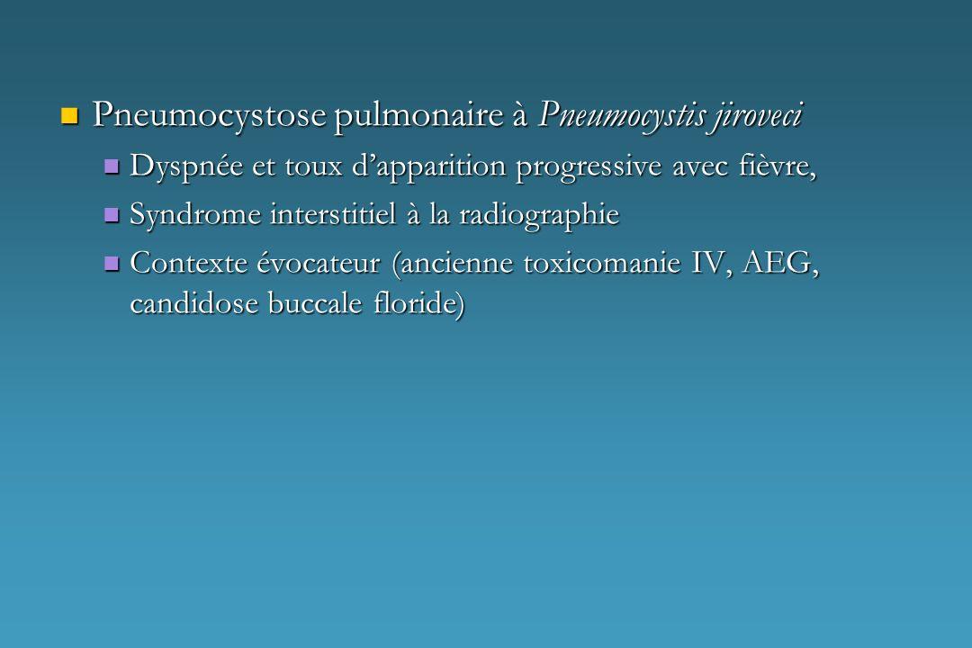 Pneumocystose pulmonaire à Pneumocystis jiroveci Pneumocystose pulmonaire à Pneumocystis jiroveci Dyspnée et toux dapparition progressive avec fièvre,
