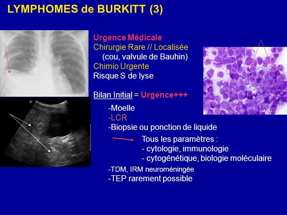 LYMPHOMES de BURKITT (3) Urgence Médicale Chirurgie Rare // Localisée (cou, valvule de Bauhin) Chimio Urgente Risque S de lyse Bilan Initial = Urgence