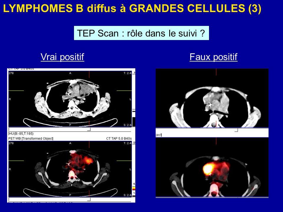LYMPHOMES B diffus à GRANDES CELLULES (3) TEP Scan : rôle dans le suivi ? Vrai positifFaux positif