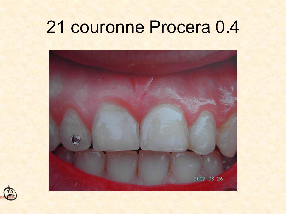 21 couronne Procera 0.4