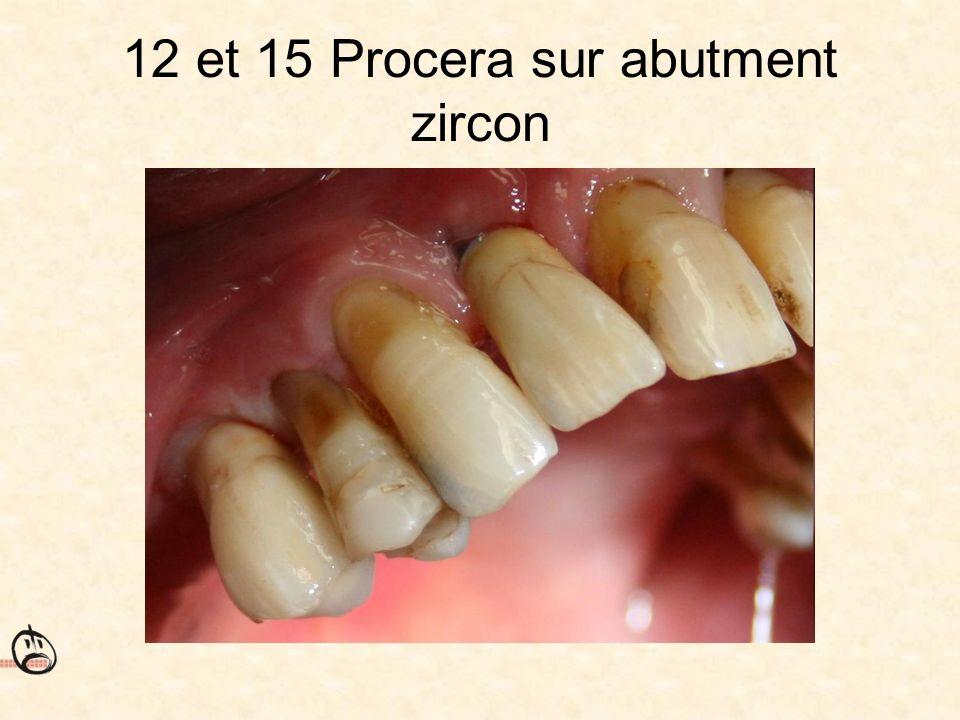 12 et 15 Procera sur abutment zircon
