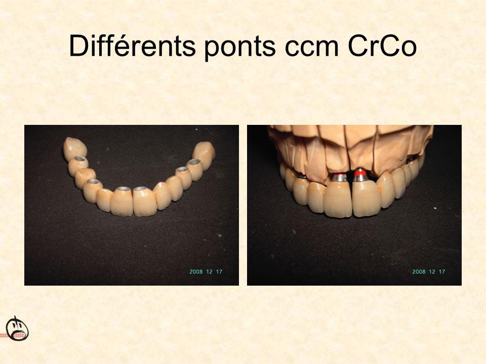 Différents ponts ccm CrCo