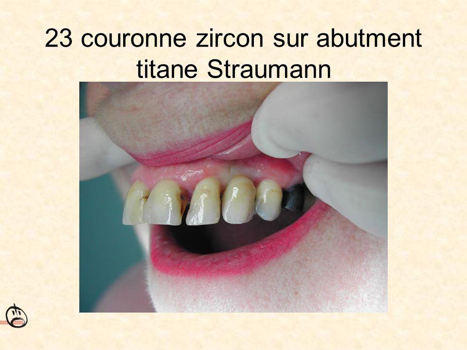 23 couronne zircon sur abutment titane Straumann