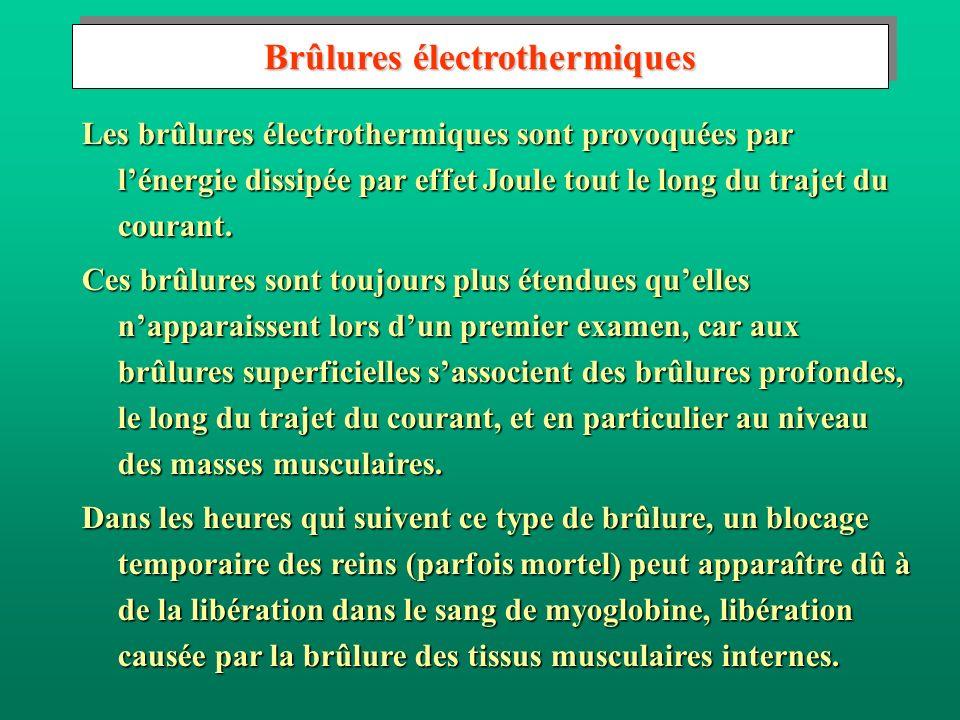 Les brûlures électrothermiques sont provoquées par lénergie dissipée par effet Joule tout le long du trajet du courant. Ces brûlures sont toujours plu