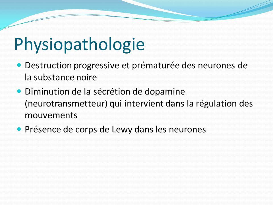 Physiopathologie Destruction progressive et prématurée des neurones de la substance noire Diminution de la sécrétion de dopamine (neurotransmetteur) qui intervient dans la régulation des mouvements Présence de corps de Lewy dans les neurones