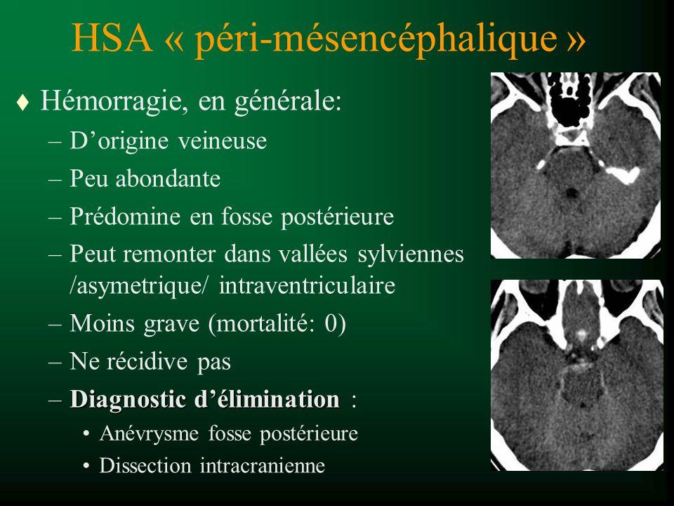 HSA « péri-mésencéphalique » t Hémorragie, en générale: –Dorigine veineuse –Peu abondante –Prédomine en fosse postérieure –Peut remonter dans vallées