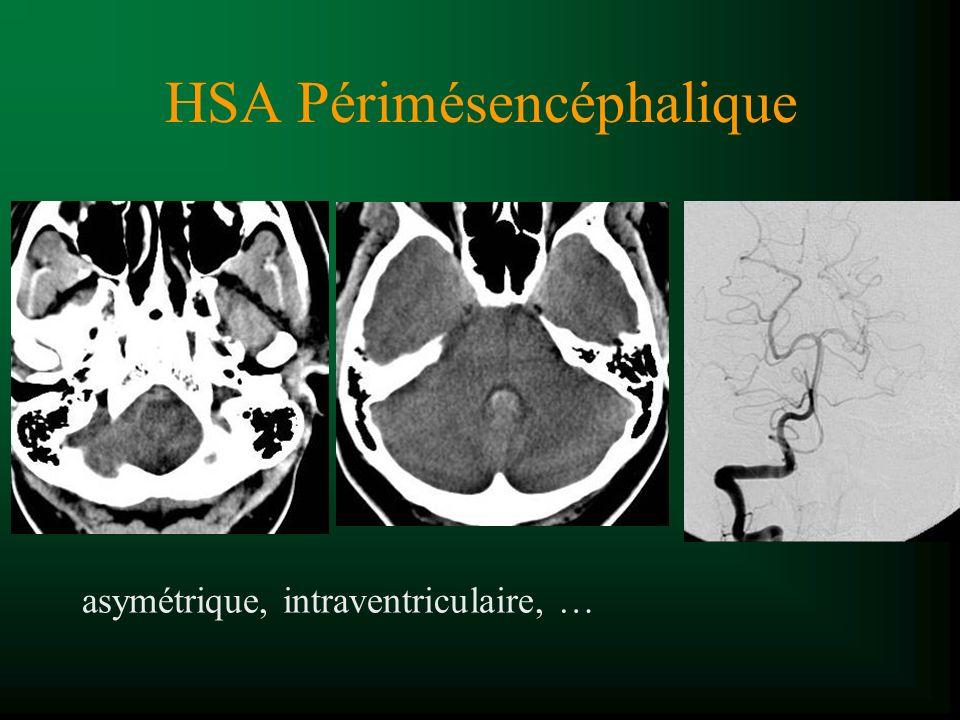HSA Périmésencéphalique asymétrique, intraventriculaire, …