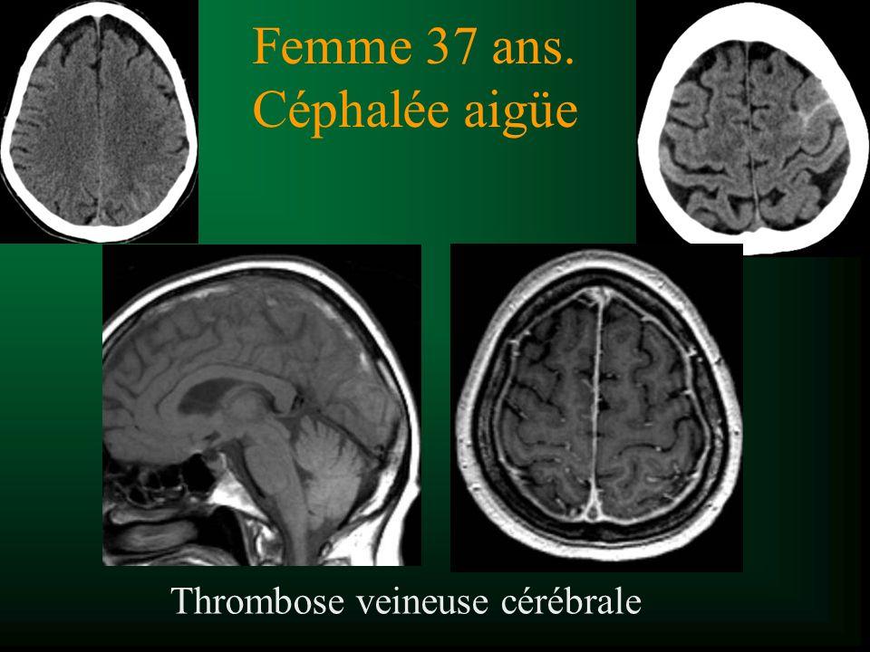 Thrombose veineuse cérébrale