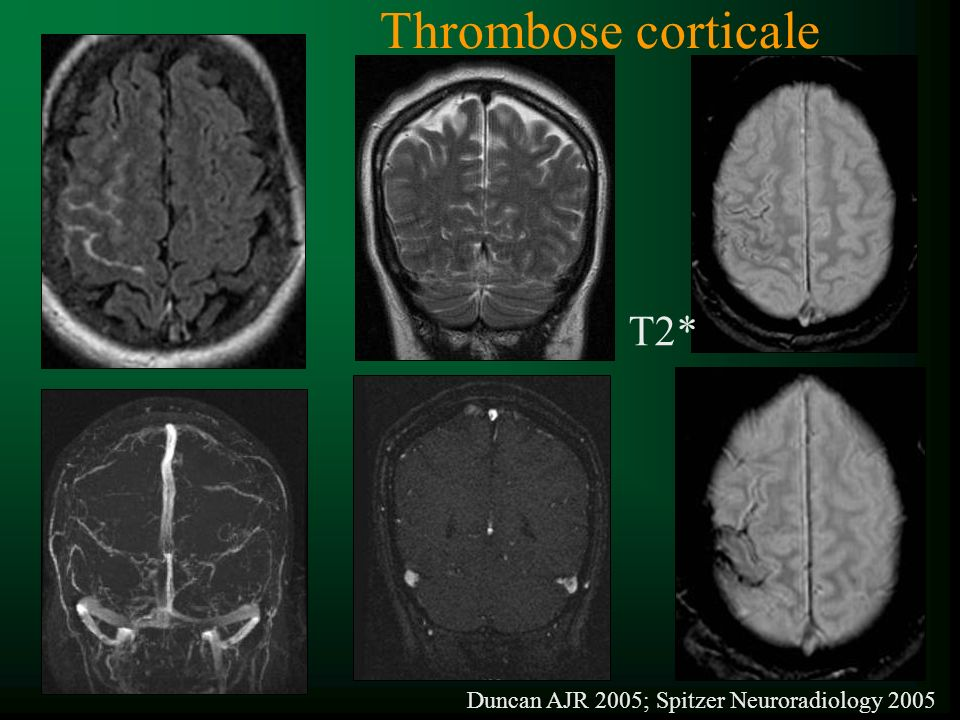 Duncan AJR 2005; Spitzer Neuroradiology 2005 Thrombose corticale T2*