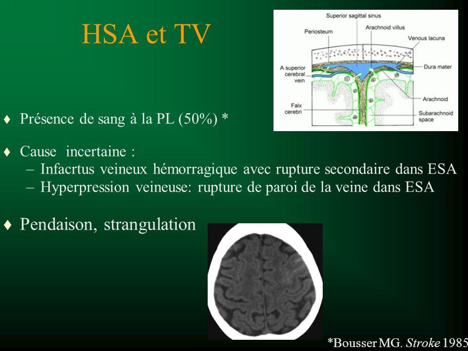 HSA et TV t Présence de sang à la PL (50%) * t Cause incertaine : –Infacrtus veineux hémorragique avec rupture secondaire dans ESA –Hyperpression veineuse: rupture de paroi de la veine dans ESA t Pendaison, strangulation *Bousser MG.