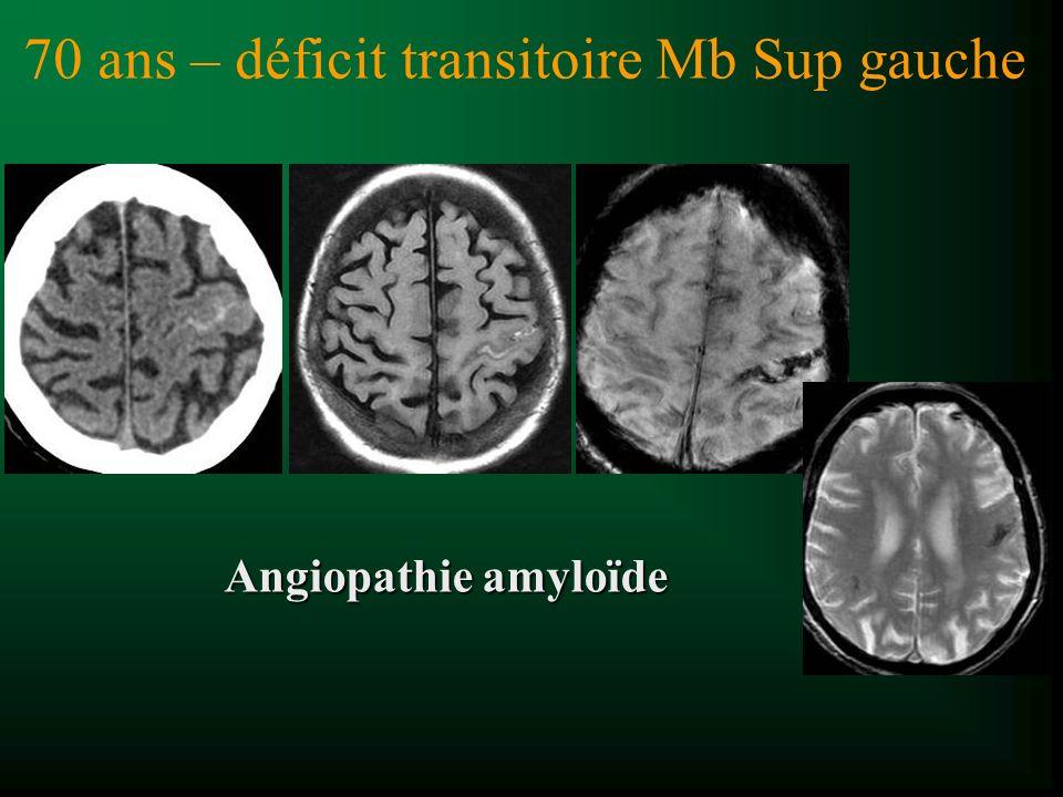 70 ans – déficit transitoire Mb Sup gauche Angiopathie amyloïde