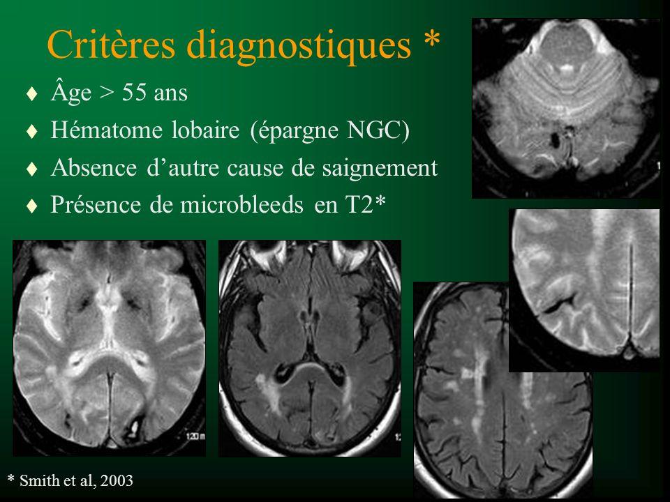 Critères diagnostiques * t Âge > 55 ans t Hématome lobaire (épargne NGC) t Absence dautre cause de saignement t Présence de microbleeds en T2* * Smith et al, 2003