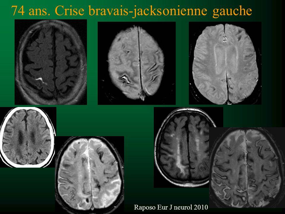 74 ans. Crise bravais-jacksonienne gauche Raposo Eur J neurol 2010