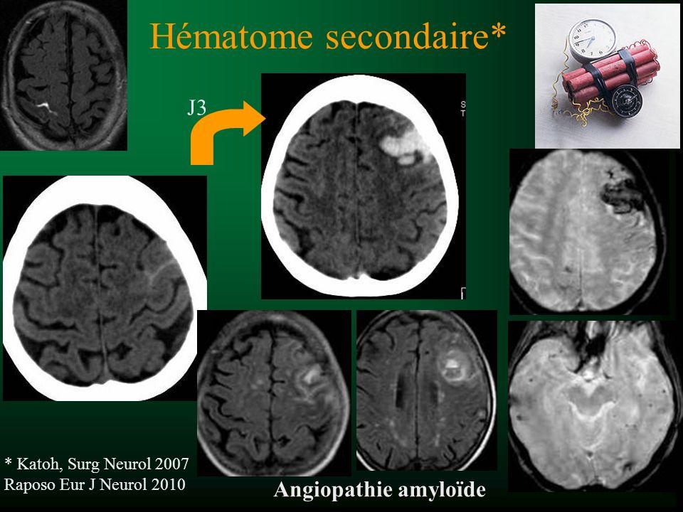 Hématome secondaire* * Katoh, Surg Neurol 2007 Raposo Eur J Neurol 2010 J3 Angiopathie amyloïde