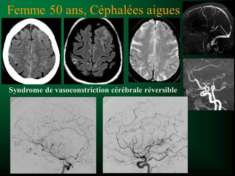 Femme 50 ans, Céphalées aigues Syndrome de vasoconstriction cérébrale réversible