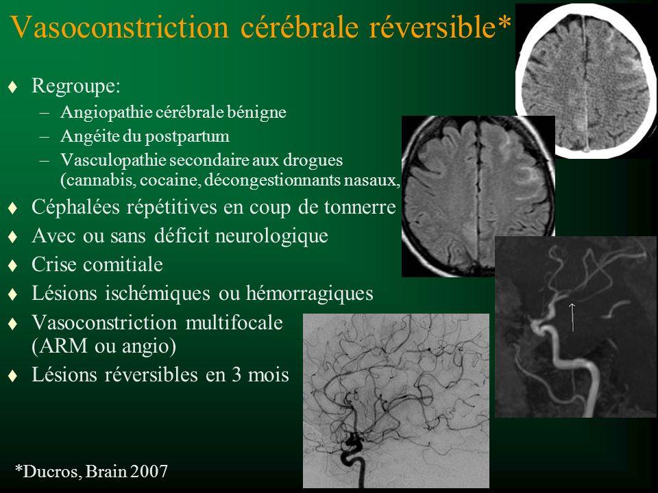 Vasoconstriction cérébrale réversible* t Regroupe: –Angiopathie cérébrale bénigne –Angéite du postpartum –Vasculopathie secondaire aux drogues (cannabis, cocaine, décongestionnants nasaux, t Céphalées répétitives en coup de tonnerre t Avec ou sans déficit neurologique t Crise comitiale t Lésions ischémiques ou hémorragiques t Vasoconstriction multifocale (ARM ou angio) t Lésions réversibles en 3 mois *Ducros, Brain 2007