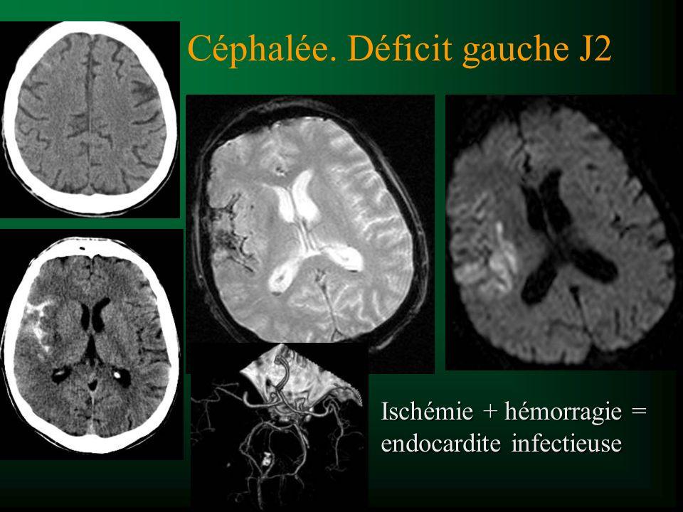 Céphalée. Déficit gauche J2 Ischémie + hémorragie = endocardite infectieuse