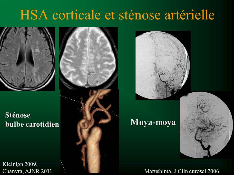 HSA corticale et sténose artérielle Sténose bulbe carotidien Kleinign 2009, Chanvra, AJNR 2011 Marushima, J Clin eurosci 2006 Moya-moya