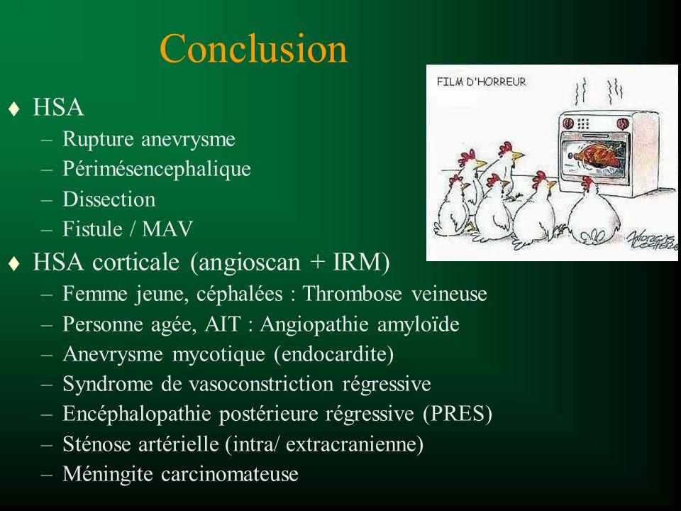 Conclusion t HSA –Rupture anevrysme –Périmésencephalique –Dissection –Fistule / MAV t HSA corticale (angioscan + IRM) –Femme jeune, céphalées : Thrombose veineuse –Personne agée, AIT : Angiopathie amyloïde –Anevrysme mycotique (endocardite) –Syndrome de vasoconstriction régressive –Encéphalopathie postérieure régressive (PRES) –Sténose artérielle (intra/ extracranienne) –Méningite carcinomateuse