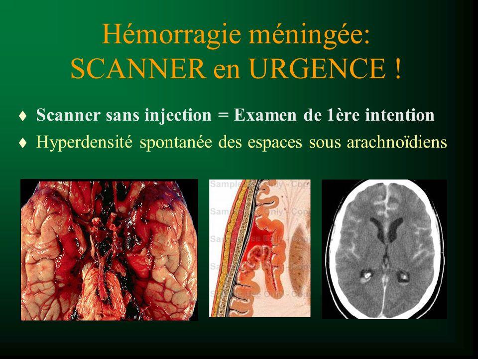 Hémorragie méningée: SCANNER en URGENCE ! t Scanner sans injection = Examen de 1ère intention t Hyperdensité spontanée des espaces sous arachnoïdiens