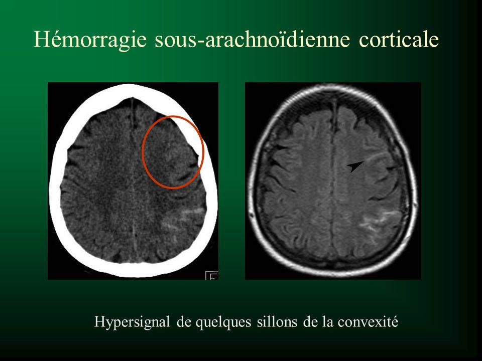 Hypersignal de quelques sillons de la convexité Hémorragie sous-arachnoïdienne corticale