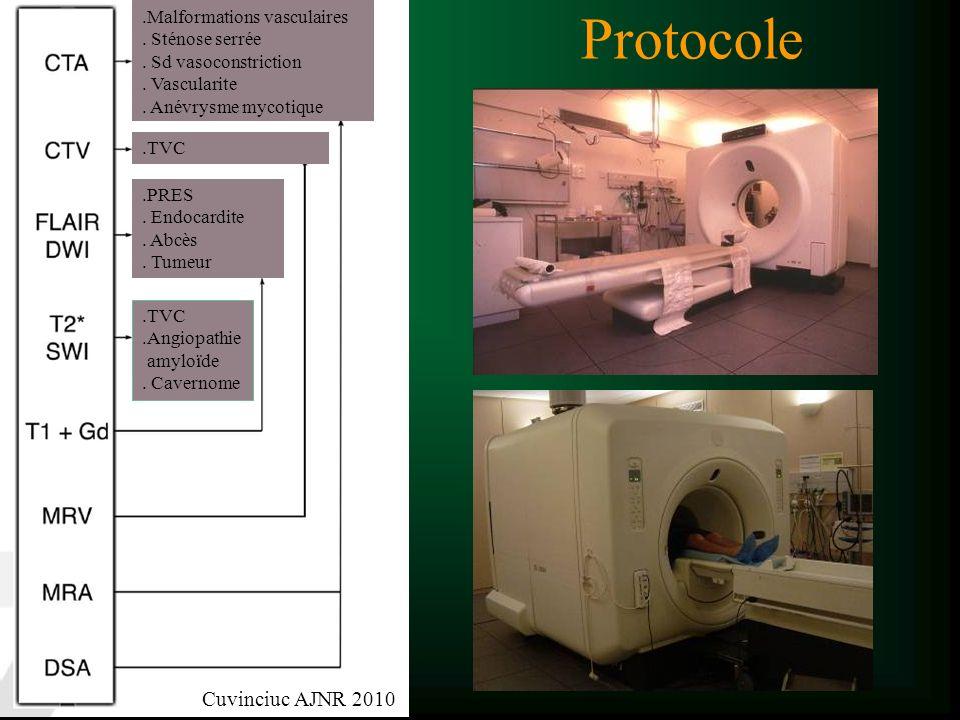 Protocole.Malformations vasculaires. Sténose serrée. Sd vasoconstriction. Vascularite. Anévrysme mycotique.TVC.Angiopathie amyloïde. Cavernome.TVC.PRE