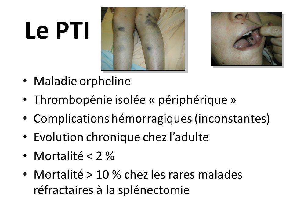 Maladie orpheline Thrombopénie isolée « périphérique » Complications hémorragiques (inconstantes) Evolution chronique chez ladulte Mortalité < 2 % Mor