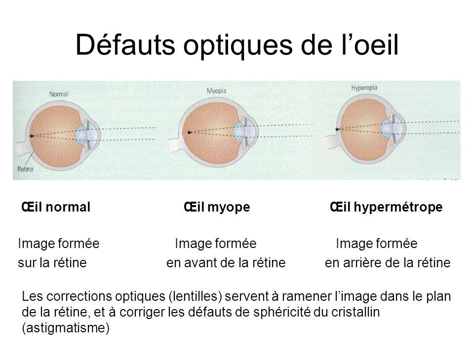 Défauts optiques de loeil Œil normal Œil myope Œil hypermétrope Image formée Image formée Image formée sur la rétine en avant de la rétine en arrière