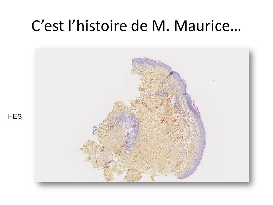 Cest lhistoire de M. Maurice… HES