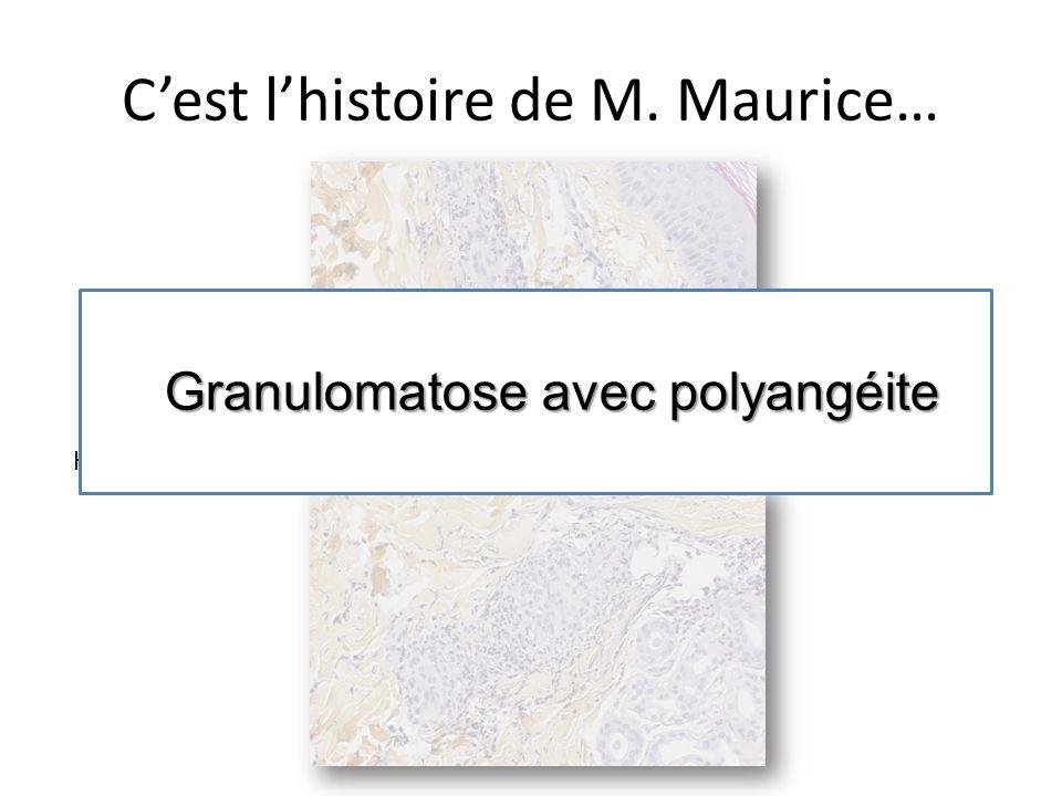 Cest lhistoire de M. Maurice… HESx400 Granulomatose avec polyangéite Granulomatose avec polyangéite