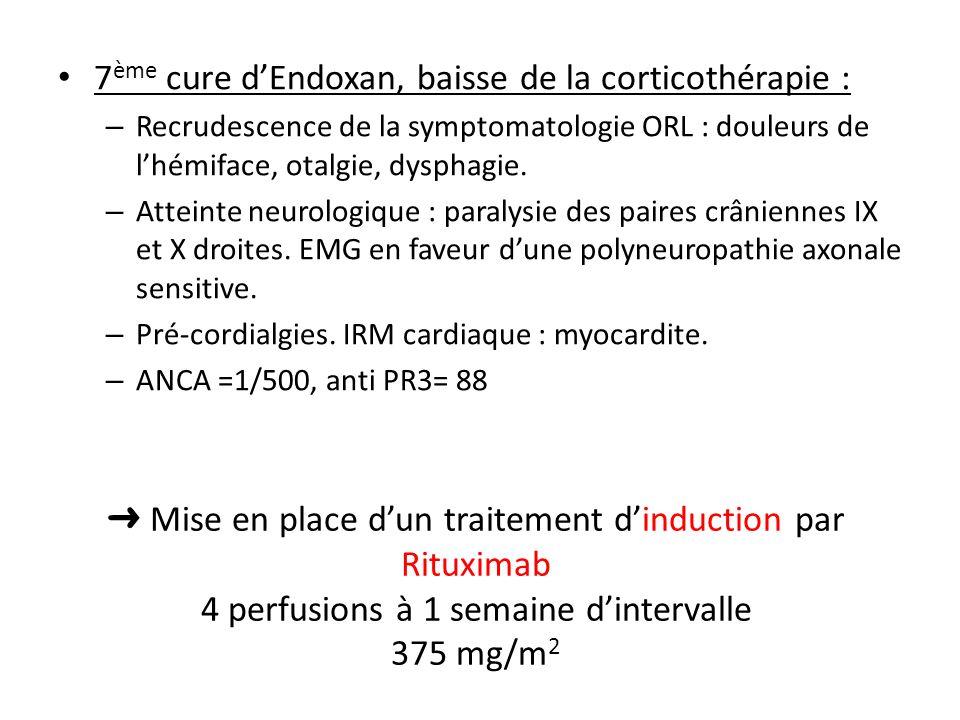 7 ème cure dEndoxan, baisse de la corticothérapie : – Recrudescence de la symptomatologie ORL : douleurs de lhémiface, otalgie, dysphagie. – Atteinte