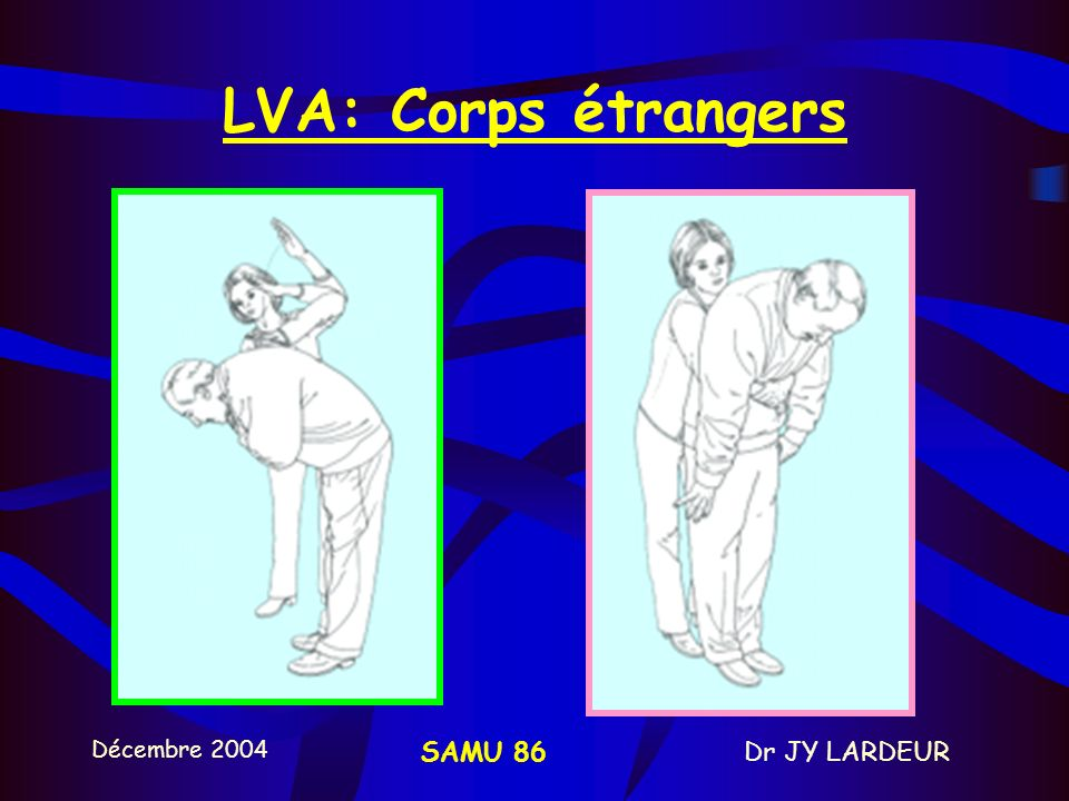 Décembre 2004 Dr JY LARDEURSAMU 86 1-REANIMATION RESPIRATOIRE LIBERATION DES VOIES AERIENNES Conscience? LVA Ventilation