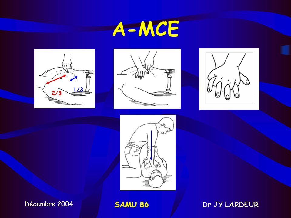 Décembre 2004 Dr JY LARDEURSAMU 86 2- REANIMATION CARDIO-PULMONAIRE A – MCE B - VENTILATION
