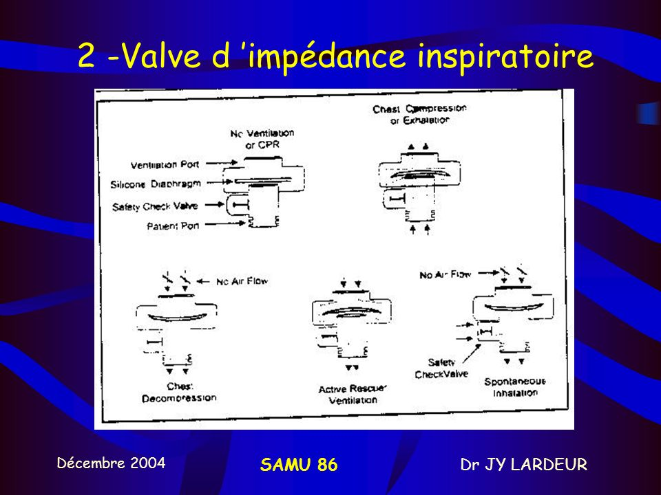 Décembre 2004 Dr JY LARDEURSAMU 86 2 - Valve d impédance inspiratoire pression intra-thoracique (+CDA) et du retour veineux exploite lénergie cinétiqu