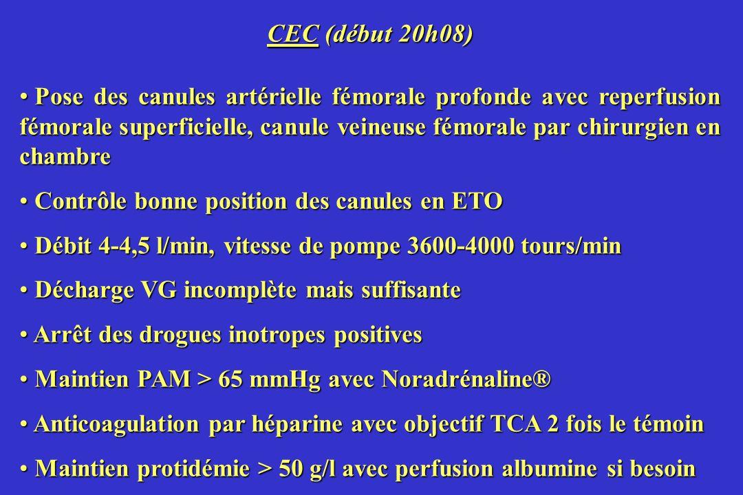 CEC (début 20h08) Pose des canules artérielle fémorale profonde avec reperfusion fémorale superficielle, canule veineuse fémorale par chirurgien en ch