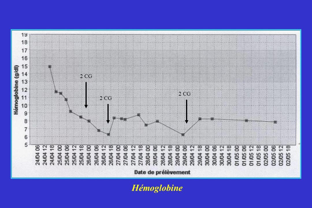 Hémoglobine 2 CG
