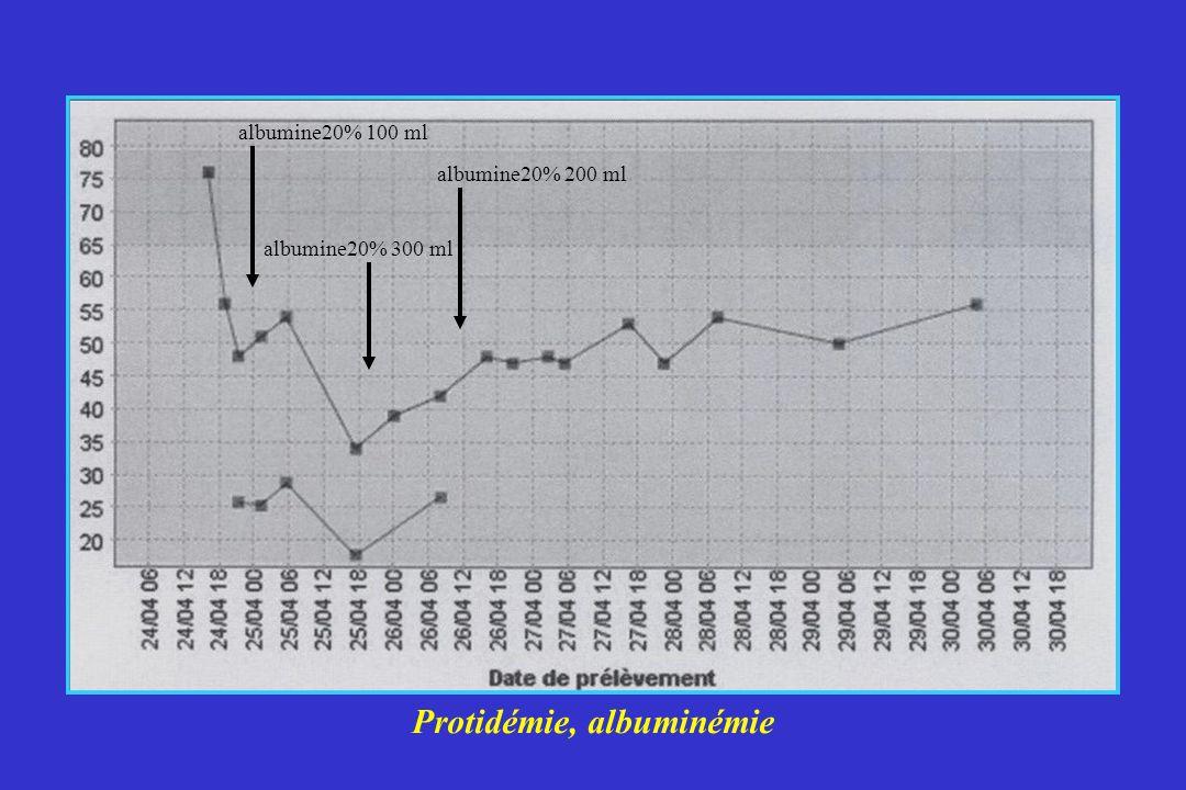 Protidémie, albuminémie albumine20% 100 ml albumine20% 200 ml albumine20% 300 ml