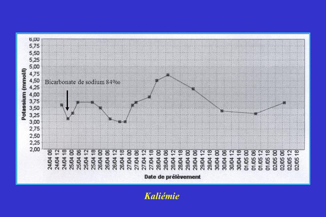 Kaliémie Bicarbonate de sodium 84