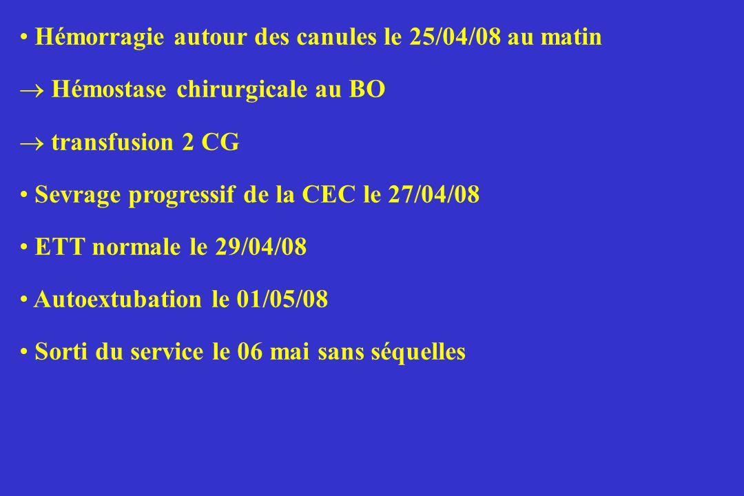 Hémorragie autour des canules le 25/04/08 au matin Hémostase chirurgicale au BO transfusion 2 CG Sevrage progressif de la CEC le 27/04/08 ETT normale