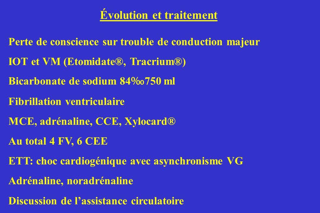 Évolution et traitement Perte de conscience sur trouble de conduction majeur IOT et VM (Etomidate®, Tracrium®) Bicarbonate de sodium 84 750 ml Fibrill