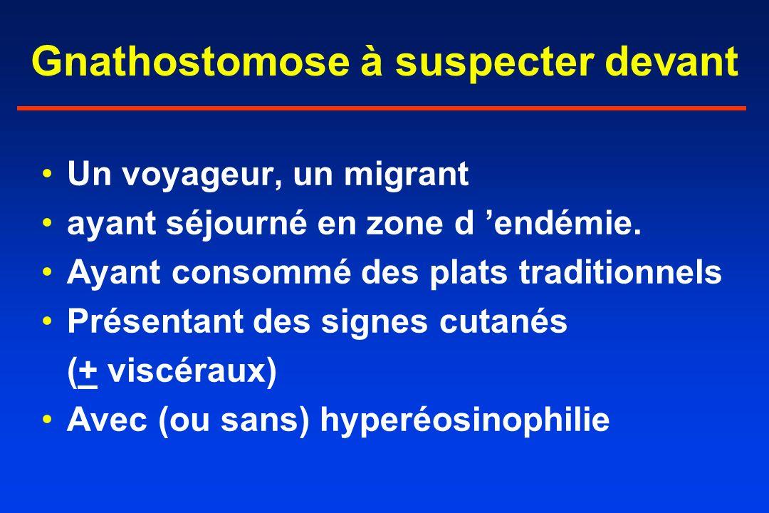 Gnathostomose à suspecter devant Un voyageur, un migrant ayant séjourné en zone d endémie. Ayant consommé des plats traditionnels Présentant des signe