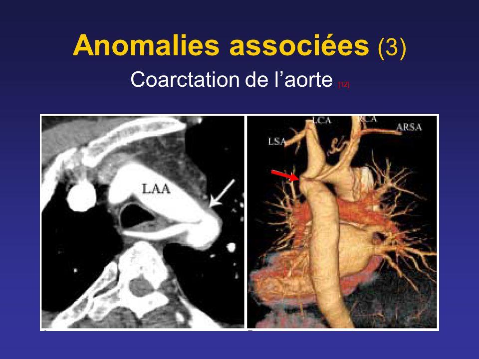 Anomalies associées (3) Coarctation de laorte [12]