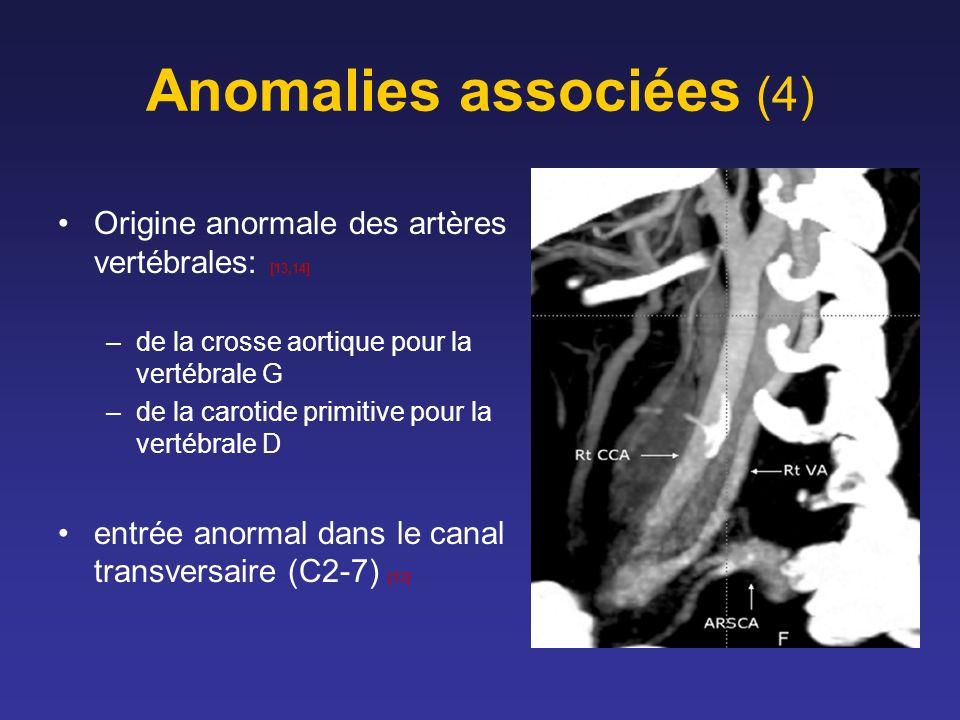 Anomalies associées (4) Origine anormale des artères vertébrales: [13,14] –de la crosse aortique pour la vertébrale G –de la carotide primitive pour la vertébrale D entrée anormal dans le canal transversaire (C2-7) [13]