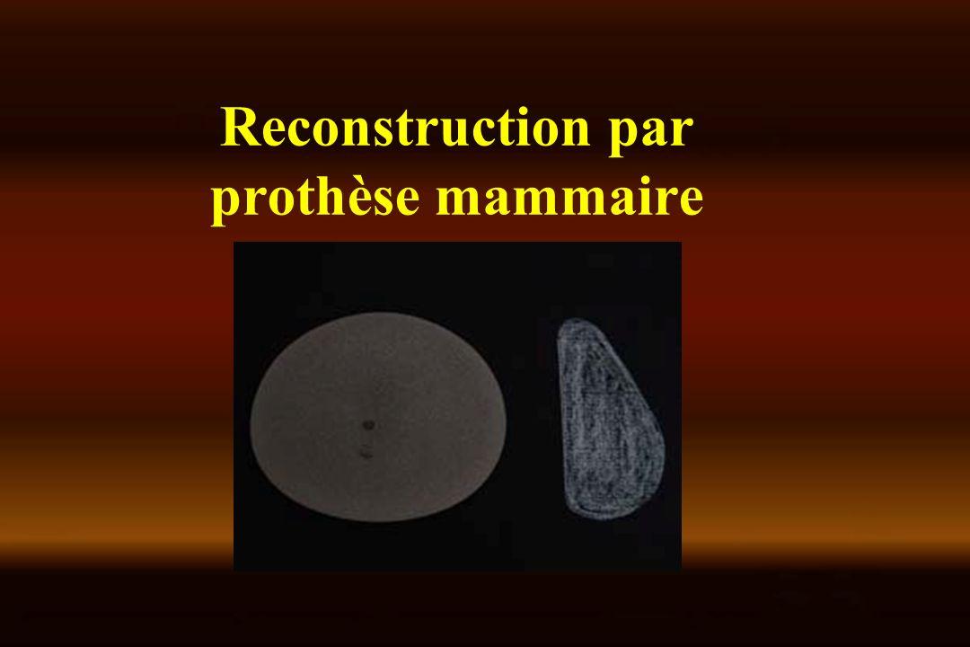 Reconstruction par prothèse mammaire