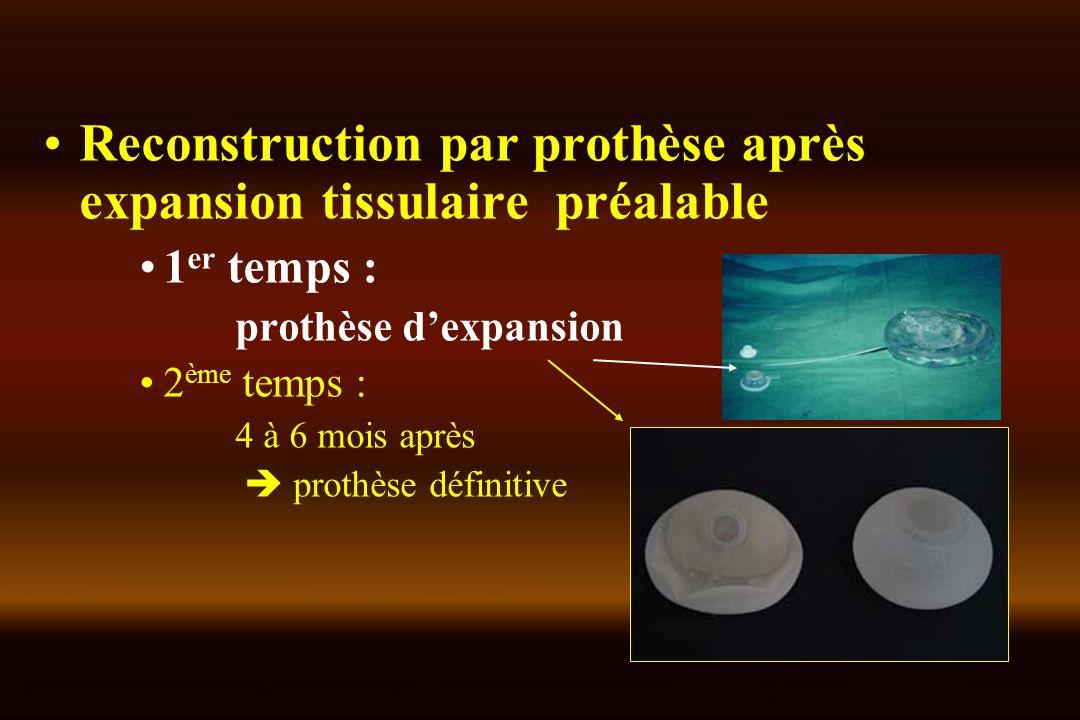 Reconstruction par prothèse après expansion tissulaire préalable 1 er temps : prothèse dexpansion 2 ème temps : 4 à 6 mois après prothèse définitive